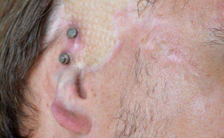 Magnetische Epithesen-Befestigung am Ohr