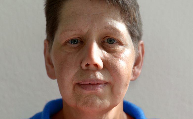 Patientin mit Nasenepithese